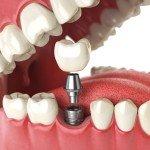 dental implants los algodones