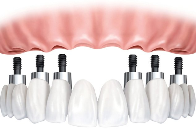 all-on-6-dental-implants-mexico