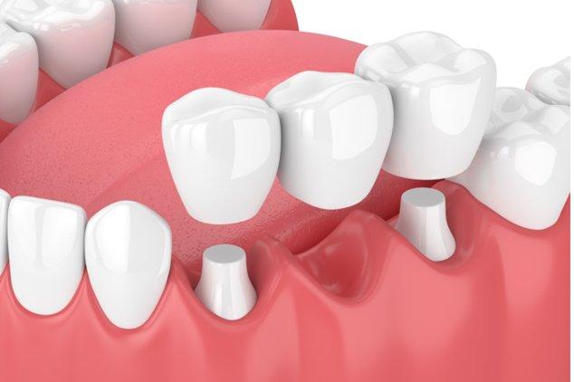 dental-bridges-mexico