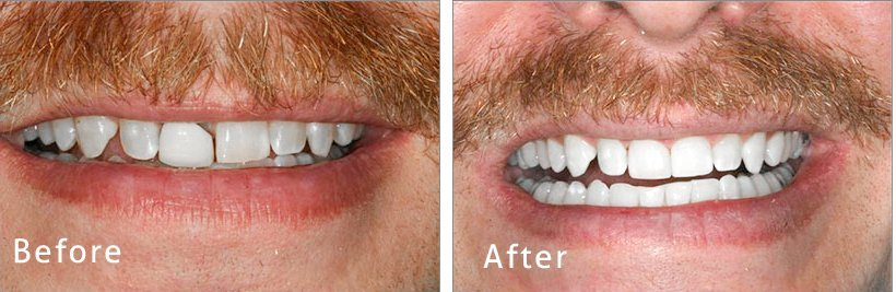dental-crown-treatment-before-and-after
