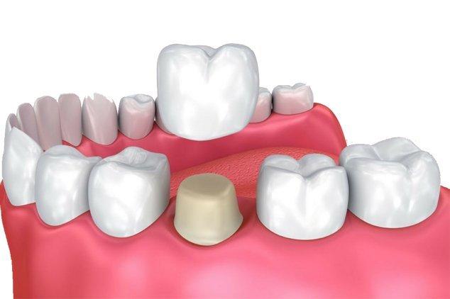 dental-crowns-mexico