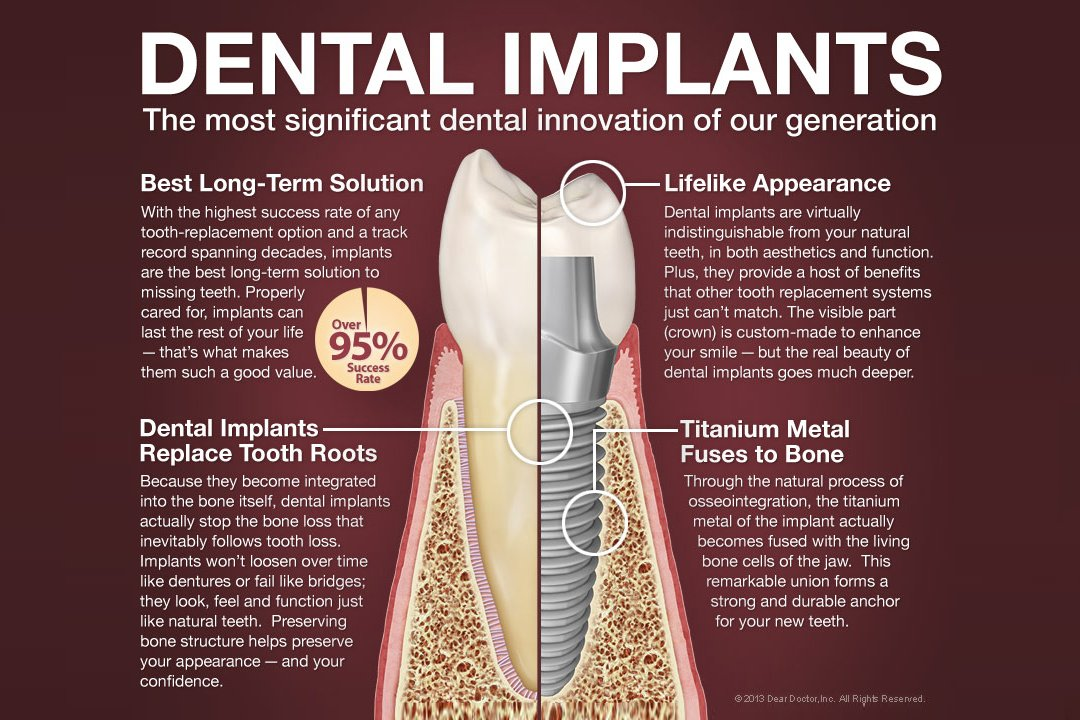 dental-implant-infographic