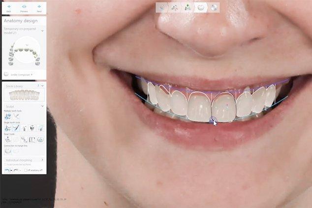 smile-design-in-mexico