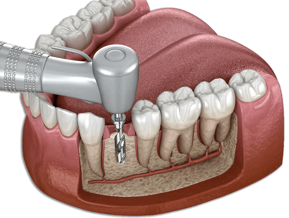 dental implants in los algodones by dr moguel