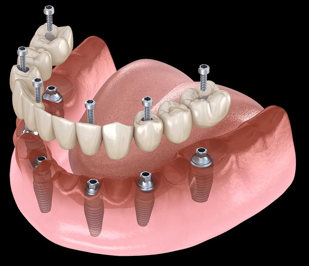 dental implants in los algodones mexico