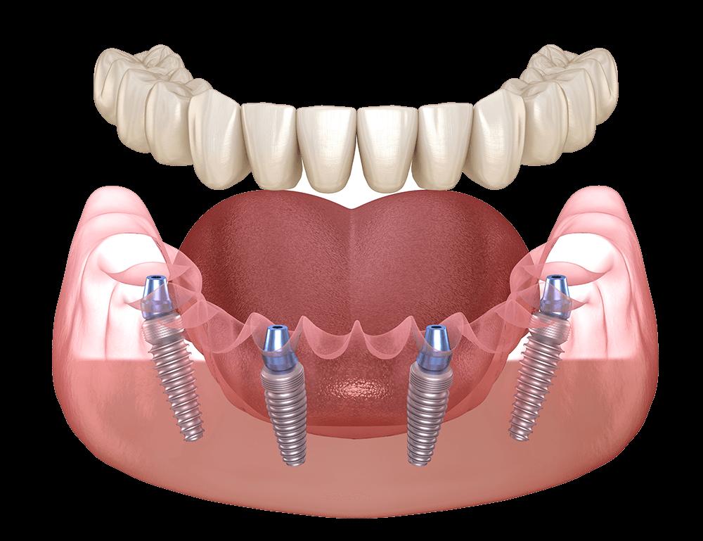los algodones dental implants center