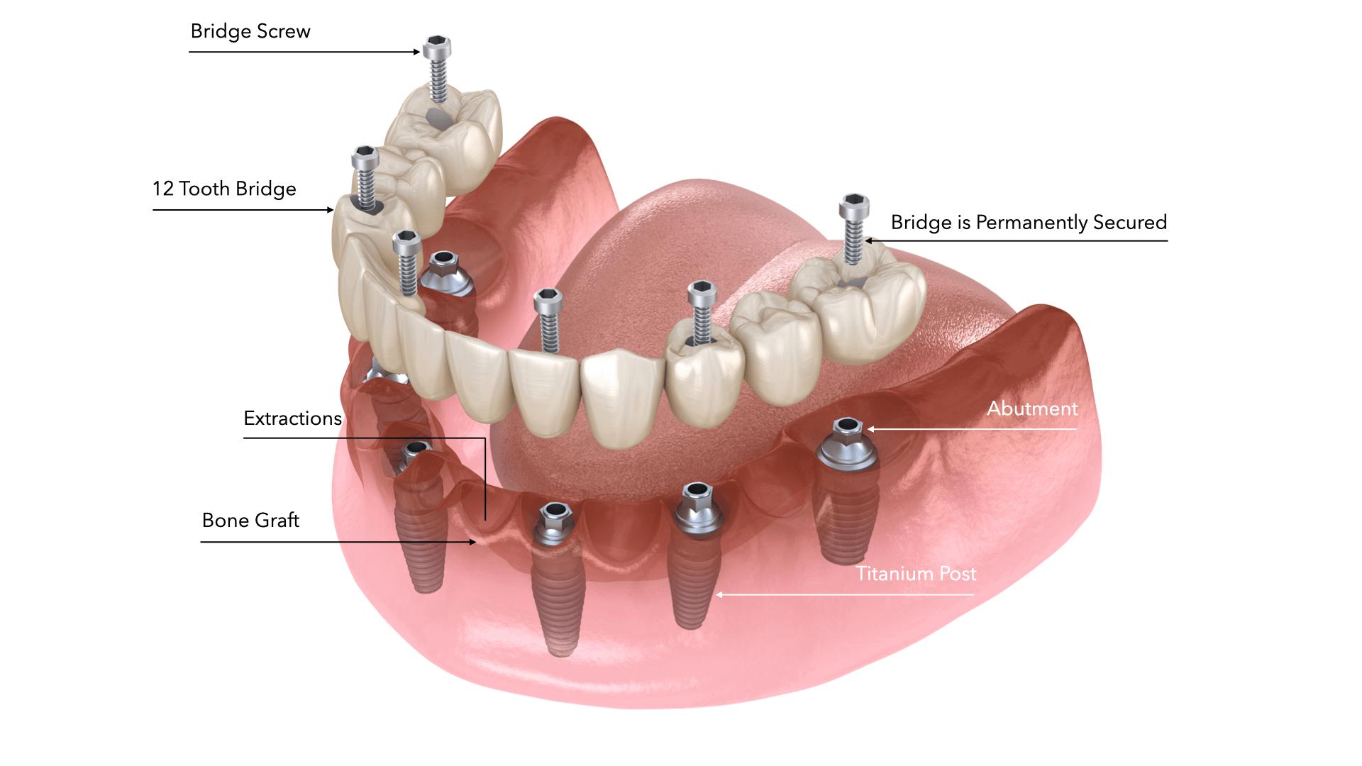 los algodones dental implants